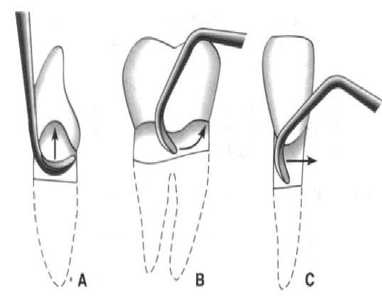 Detartraje y alisado radicular periodoncia - Como panelar una pared ...